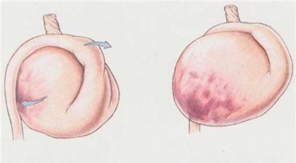 схема заворота желудка